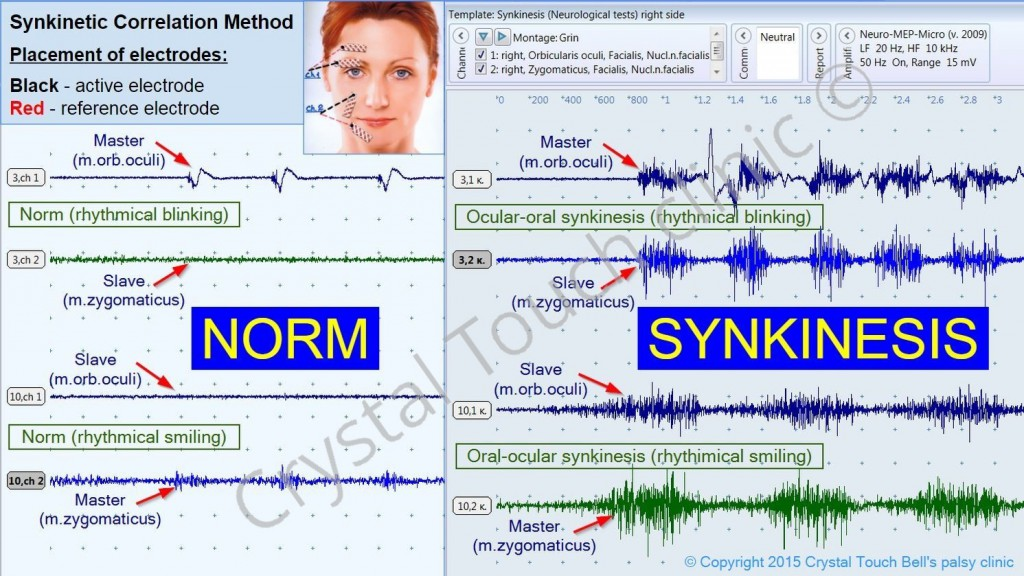 Synkinetic correlation method, measuring Bell's Palsy