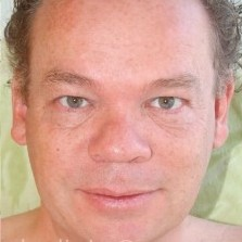 Ronald Complications and residuals after 7 years of long-standing Bell's palsy