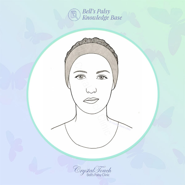 Difference between facial palsy and Bell's palsy