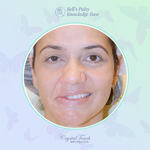 Recovery after acute facial palsy