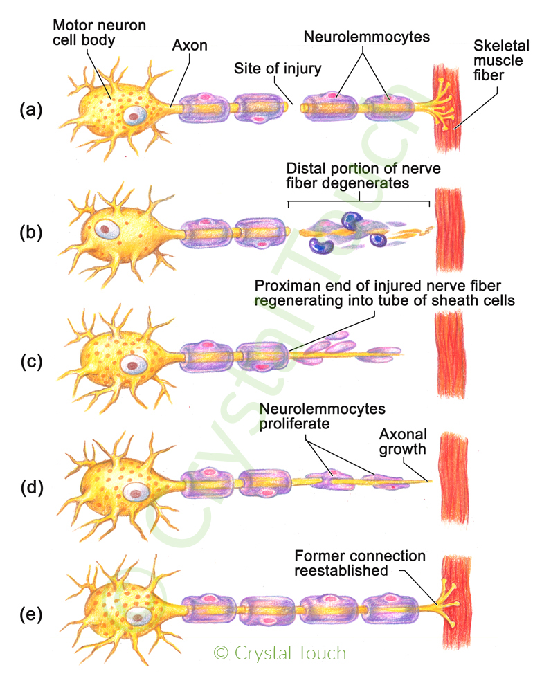 Regeneration of a neuron